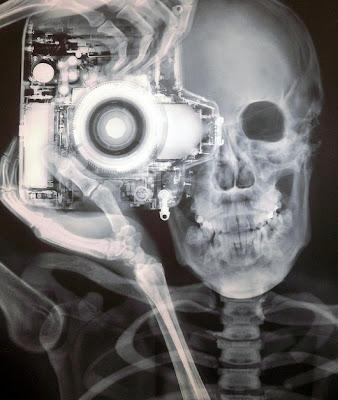 foto rayos x