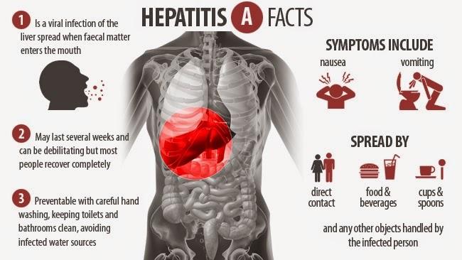 ஹெப்படைட்டிஸ் A, ஹோமியோபதி சிறப்பு சிகிச்சை, Homeopathy Specialty treatment for Hepatitis A at Velachery, Chennai, Tamil Nadu, India