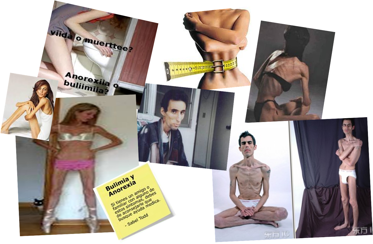 bulimia and anorexia a growing epidemic Read bulimia & anorexia is growing in the us free essay and over 88,000 other research documents bulimia & anorexia is growing in the us bulimia and anorexia is a growing epidemic in america.