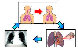 Cara Mencegah Penyakit TBC