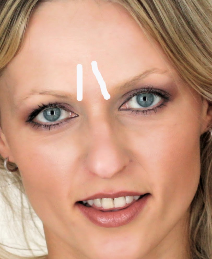 How To Get Rid Of Frown Glabella Or Furrow Lines On Forehead