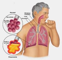 menangani batuk berdahak Dewasa