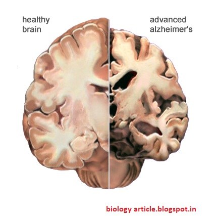 a description of alzheimer a brain disorder A healthy brain next to a brain with alzheimer's disease  of aging gone awry:  dementia, the umbrella term for the symptoms some older adults.