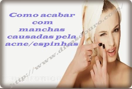 como-acabar-com-manchas-causadas-pela-espinhas-acne
