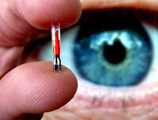diaforetiko.gr : chip ΣΟΚ: Yποχρεωτικό θα είναι το Microchip για όλα τα βρέφη από το Μάιο του 2014!!!