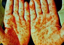 Obat Ampuh Penyakit Sipilis