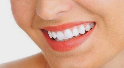 senyum gigi putih dalam 5 hari