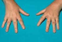 Juvenile-idiopathic-chronic-arthritis