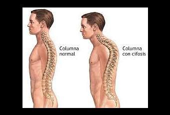 El entrenamiento de los pies a los dolores en la espalda