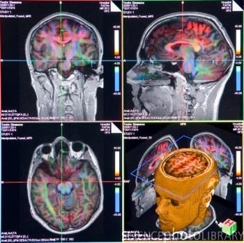 Brain Imaging8