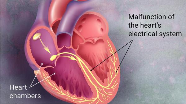 Cialis Heart Palpitations