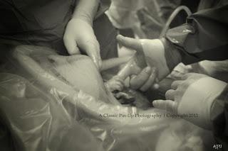 Bayi Genggam Jari Dokter - Operasi Caesar