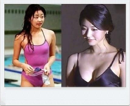 K Pop K Fans Celebrities Who Got Breast Augmentation