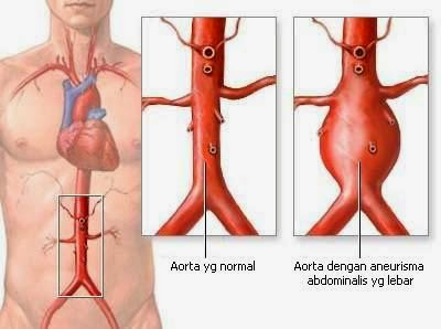 Obat Tradisional Penyakit Aneurisma