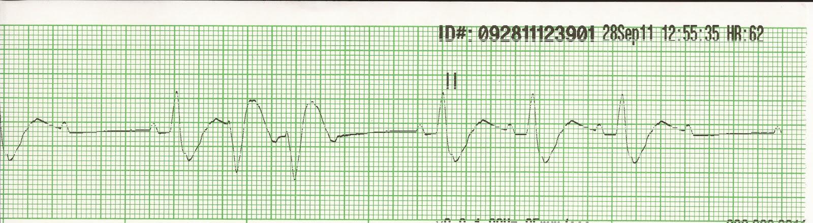 Float Nurse: EKG Rhythm Strips 20: Ventricular Ectopy 3