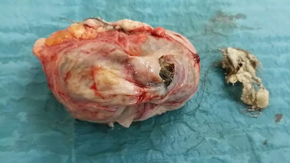 Bahaya Penyakit Ovarian Cyst kepada Wanita Muda