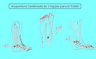 http://www.amazon.es/ACUPUNTURA-COMBINADA-AGUJAS-V%C3%ADctor-Galer%C3%B3n-ebook/dp/B012B9KUSE/ref=sr_1_3/279-6017422-5204323?s=digital-text&ie=UTF8&qid=1448624006&sr=1-3