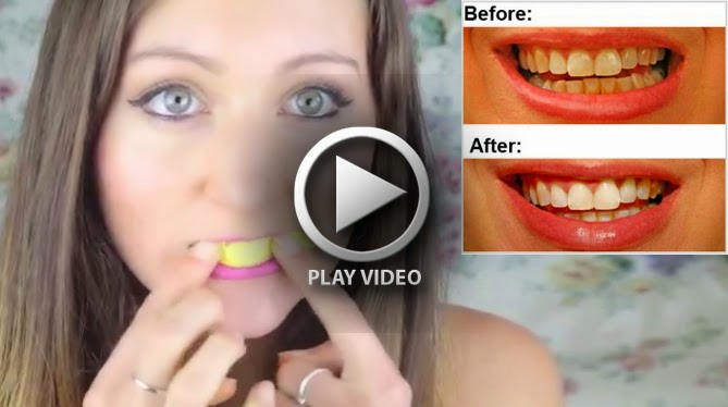 how to fix really yellow teeth