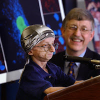Progeria-Disease