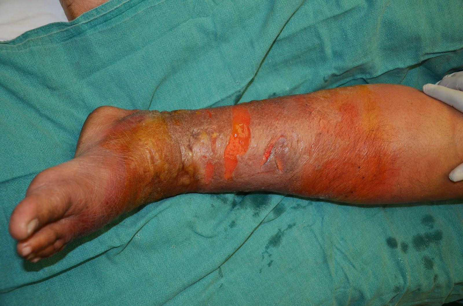 Cellulitis leg surface debridement and outcome infections