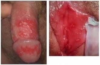 Llagas rojas doloridas en la vagina