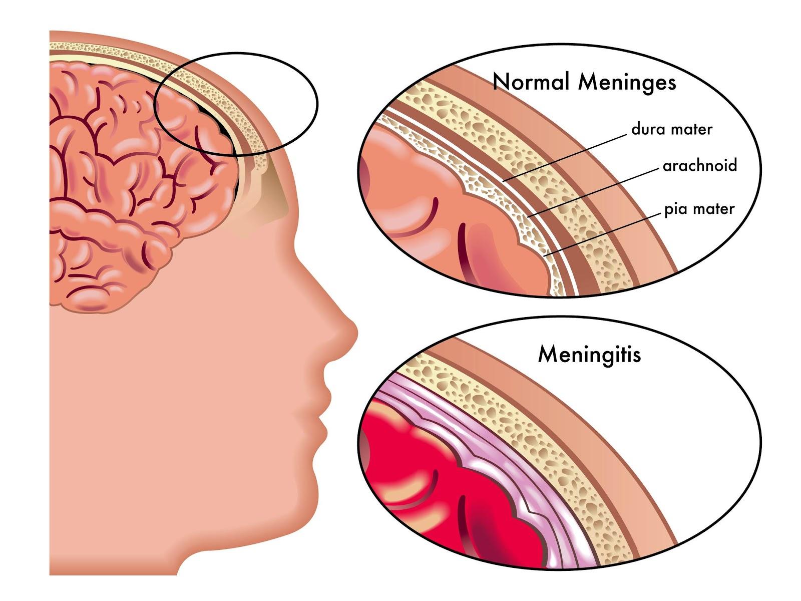 steroids meningococcal sepsis