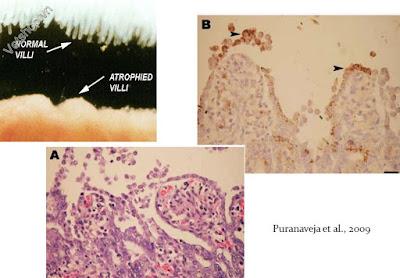Hình 8: Các bệnh tích vi thể: PEDV gây bất dưỡng nhung mao ruột.