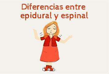 Diferencias entre epidural y espinal