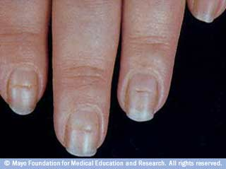 How to diagnose black streaks in your fingernails - Nutrition