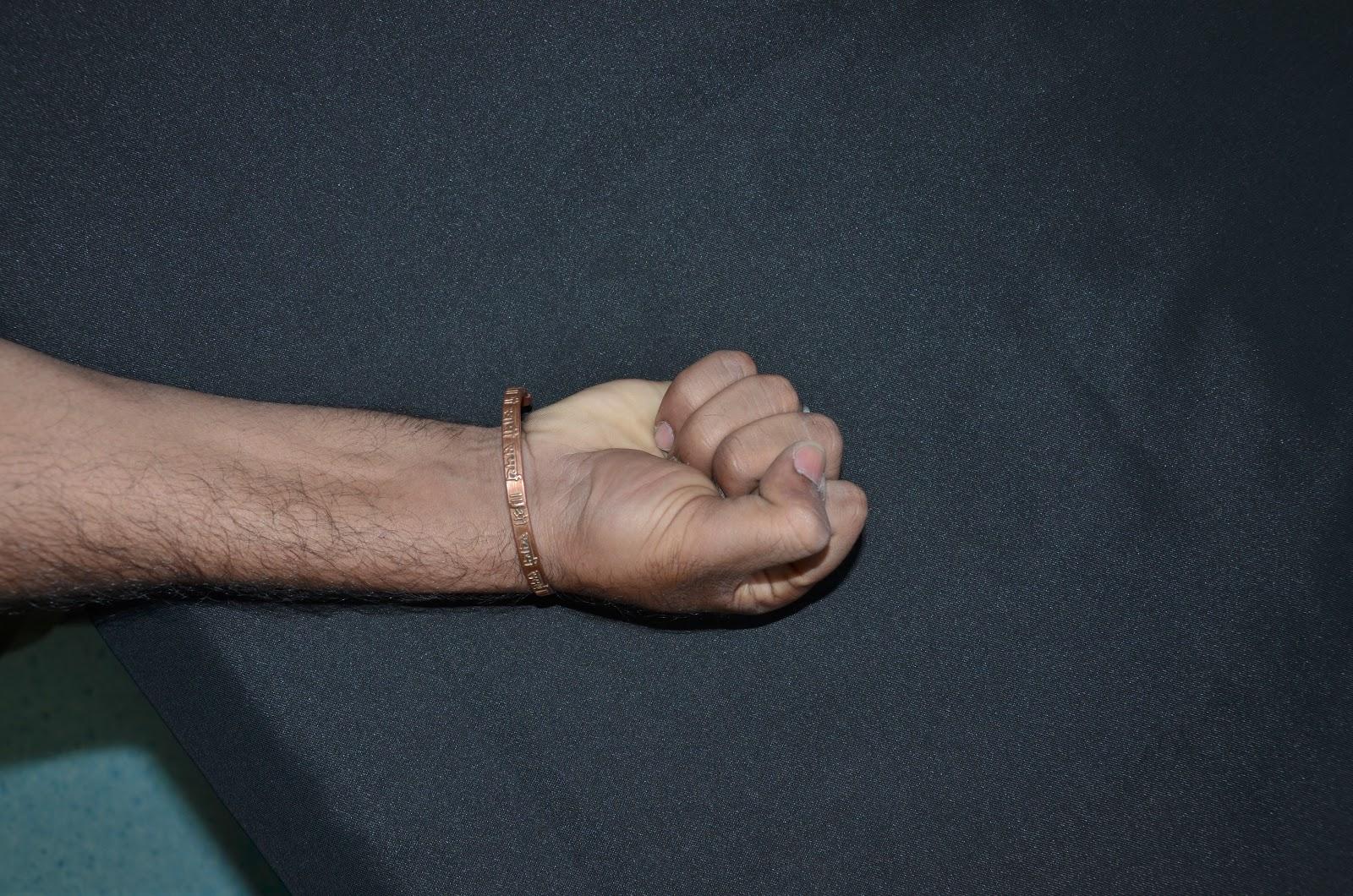 Compound Wrist Fracture-4.bp.blogspot.com