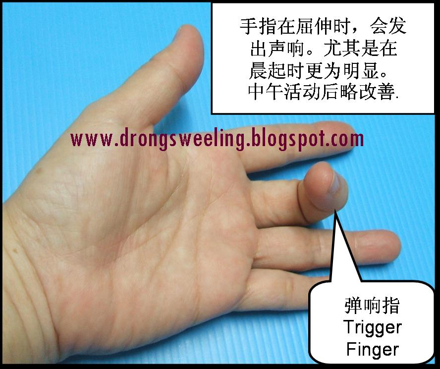 trigger finger Trigger finger is a common disorder of the hand that can cause pain, snapping or locking of the fingers or thumb the sensation of locking or catching has often been referred to as triggering.