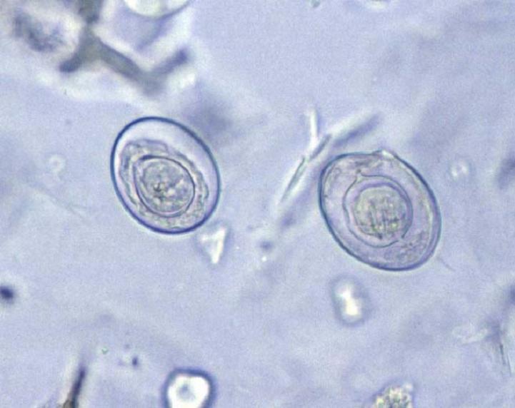 Informatii medicale despre himenolepidoza
