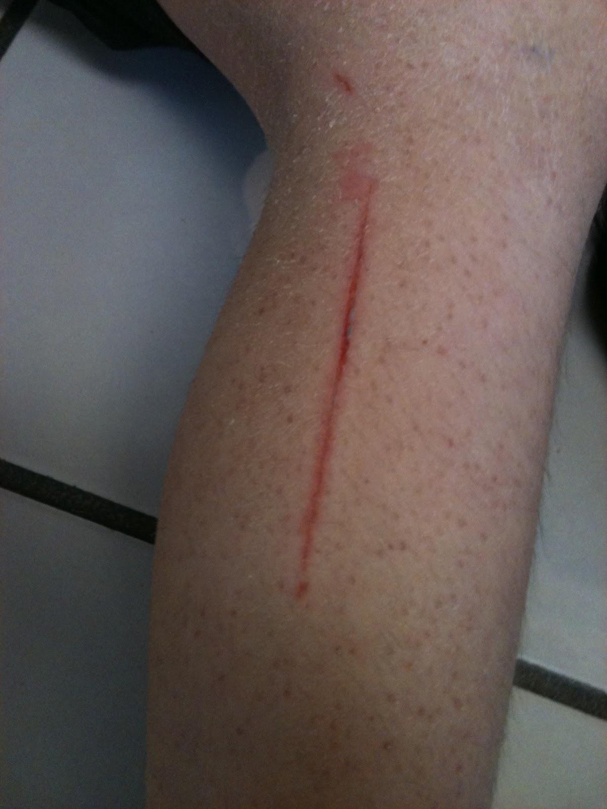 Bleeding cut on leg