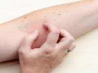 Lima Gejala Sakit Ginjal yang Sering Diabaikan