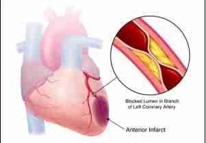 arteri_koroner, jantung_koroner