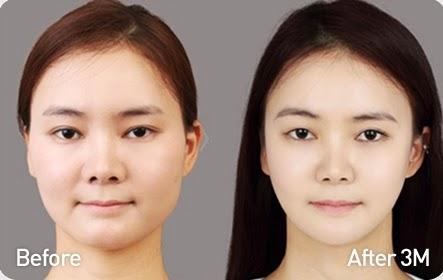 Foto sebelum dan sesudah koreksi tulang wajah-1