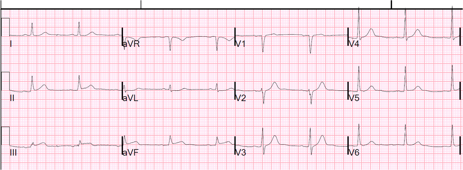 history of ecg Nm3010 - 12 lead ecg and its use in assessment of the patient cppd  the  recording and interpretation of the 12 lead ecg is becoming an essential skill for.