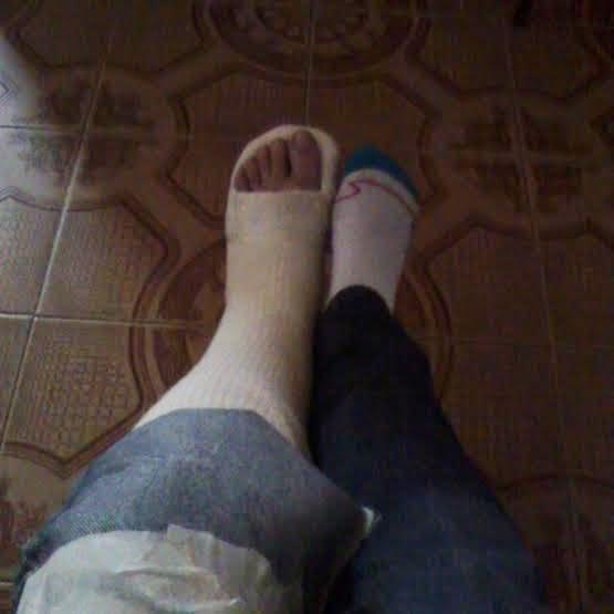 Fafis com pé engessado desde 03.10.14