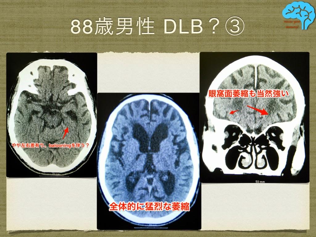小脳だけではなく、大脳も著明に萎縮