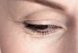 Petua Mengurangkan Tanda-tanda Kedut Di Wajah