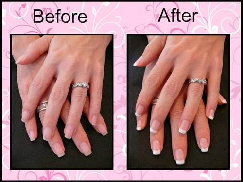 Cute Gel Nails Ideas Magnificent