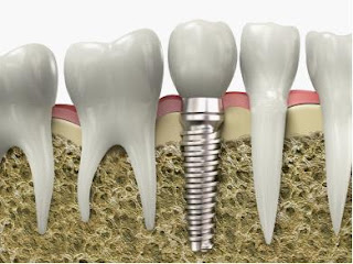Dentists Silver Spring MD