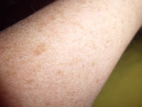 piel seca del brazo