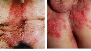 cara mengobati penyakit kadas kudis