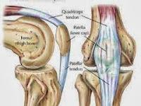 Bahaya Penyakit Osteoarthritis