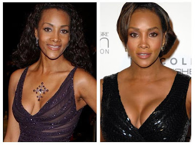 Vivica Fox Plastic Surgery Before And After Pictures