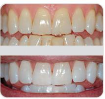 Sbiancamenti dentali studio odontoiatrico dr i for A quanti mesi i cani cambiano i denti