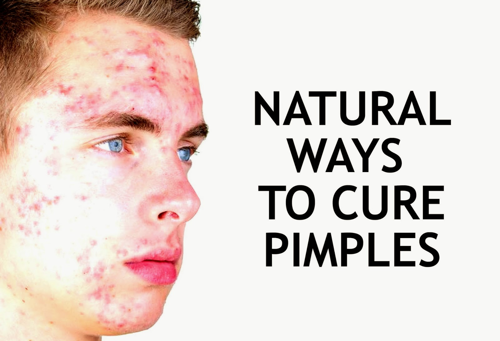 How To Reduce Pimples Naturally At Home In One Day