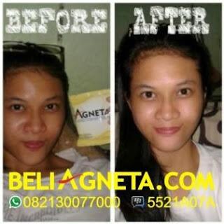 Testimony Agneta