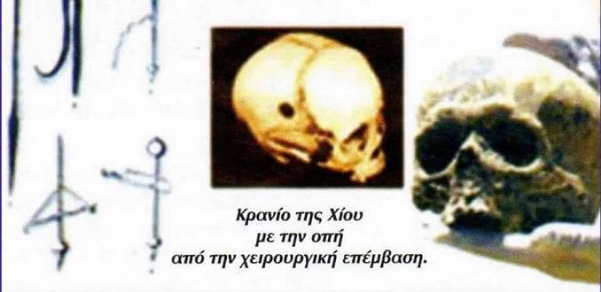 Εύρεση ανδρικού κρανίου στη Χίο που είχε υποστεί λεπτή χειρουργική επέμβαση